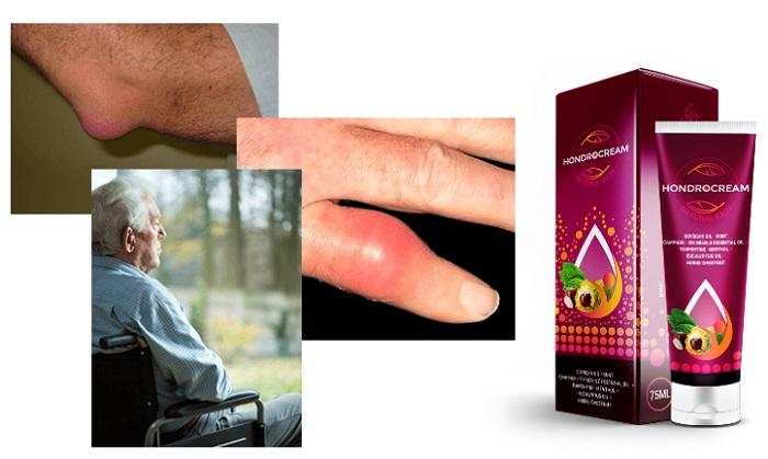 Hondrocream untuk sendi: mengembalikan lengan, kaki dan cakera intervertebral dalam masa 6 hari!