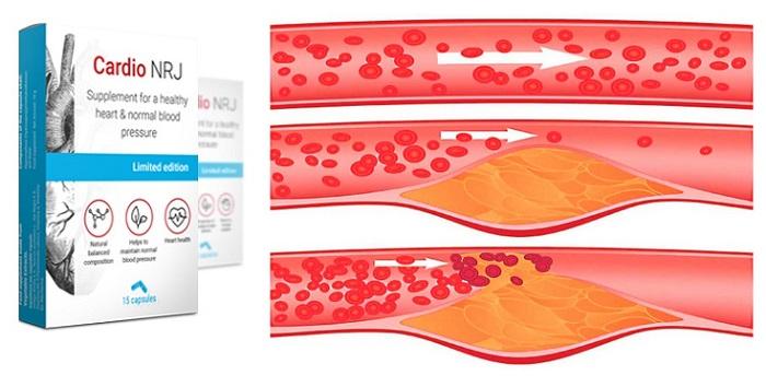Cardio NRJ dari hipertensi: akan memberimu kesehatan dan umur panjang!